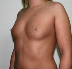 Заговор для увеличения груди