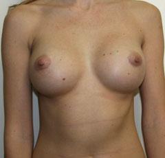 Все виды увеличения груди