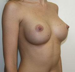 Как увеличить размер груди с помощью мобильного