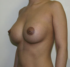 Рита агибалова после подтяжки груди