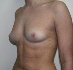Объем груди арнольда