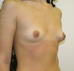 Увеличение груди во Владивостоке - Увеличение груди -
