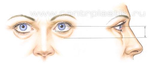 После операции блефаропластики (пластики век)
