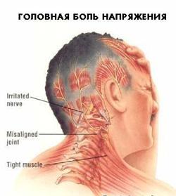 Что за болезнь когда на спине белые пятна
