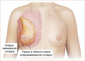 После увеличения груди сколько носить белье