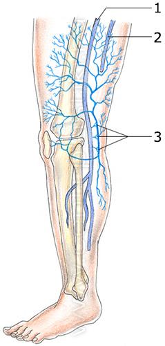 Варикозное расширение вен малого таза у мужчин симптомы