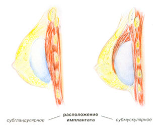 Увеличение груди: расположение силиконового имплантанта груди