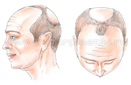 После использования природных средств волосы становятся блестящими, более крепкими и