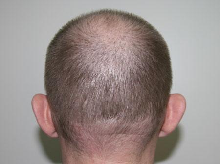 КАК восстановить волосы после выпадения :: Уход за